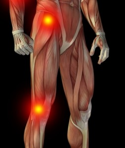 Image of musculoskeleton with joints highlighted.